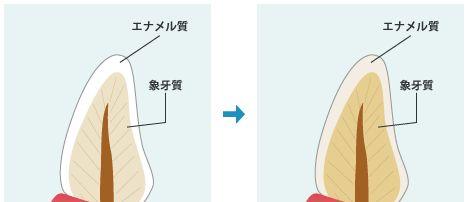 エナメル質と象牙質の経年による色の変化