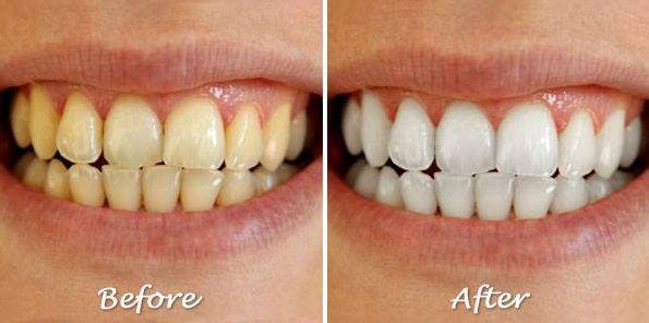 ホワイトニング前後の歯