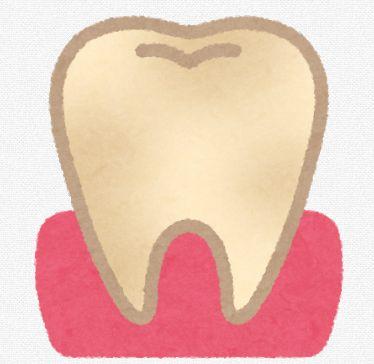歯の黄ばみ黒ずみの原因
